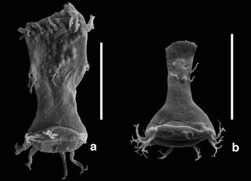 4억1500만년 전의 기형 플랑크톤 화석을 통해 중금속 오염이 대량 멸종의 원인들 중 하나였을 수도 있다는 것이 밝혀지다