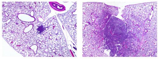 폐조직 사진에서 볼 수 있는 염증 병변. 왼쪽은 Pla 유전자가 없는 오래된 폐 페스트 박테리아 스트레인으로 인한 것, 오른쪽은 Pla 유전자가 있는 박테리아로 인한 것. Pla 유전자가 이 스트레인에 추가되면서 폐페스트를 일으키게 되었다. Credit: Image courtesy of Northwestern University