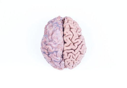 인간의 뇌 (스탁 이미지). 육류를 섭취하는 것이 큰 뇌의 진화에 시동을 걸었을 수 있지만 녹말로 된 음식을 요리해 먹는 것이 침에 포함된 아밀라아제를 만드는 유전자와 함께 우리를 더 똑똑하게 만들어주었다고 한다. Credit: ⓒ giorgiomtb / Fotolia