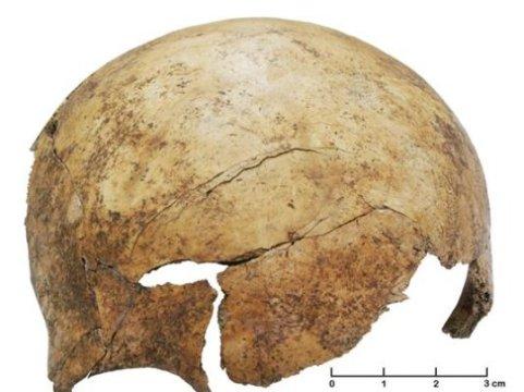 죽기 직전이나 직후에 입은 심한 상처. 세 살에서 다섯 살 정도 된 아이의 머리뼈에서 발견되었다. Credit: University of Basel, IPNA