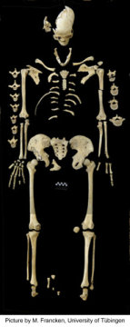 약 7천 년 된 여성의 골격에서 백혈병의 흔적이 발견되었다. Credit: ⓒ M. Francken/Universitat Tubingen